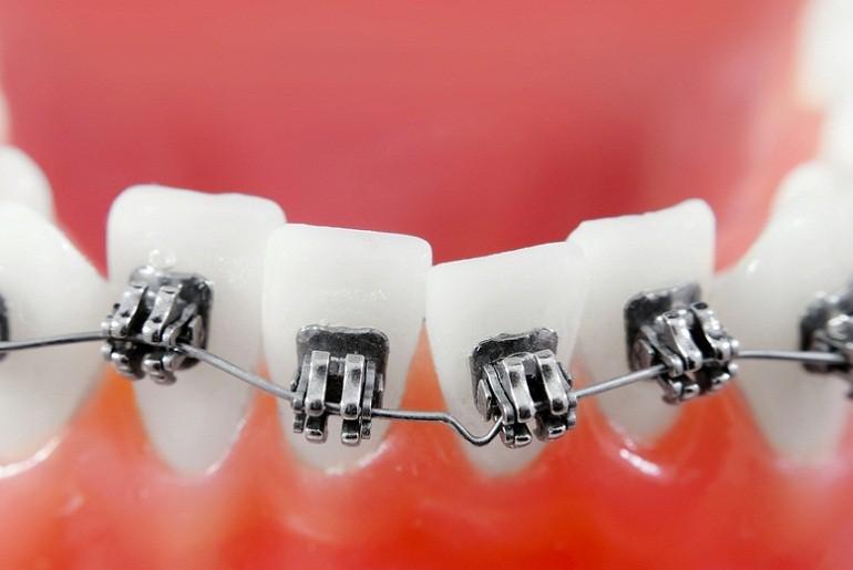 a fogszabályozók segíthetnek a fogyásban