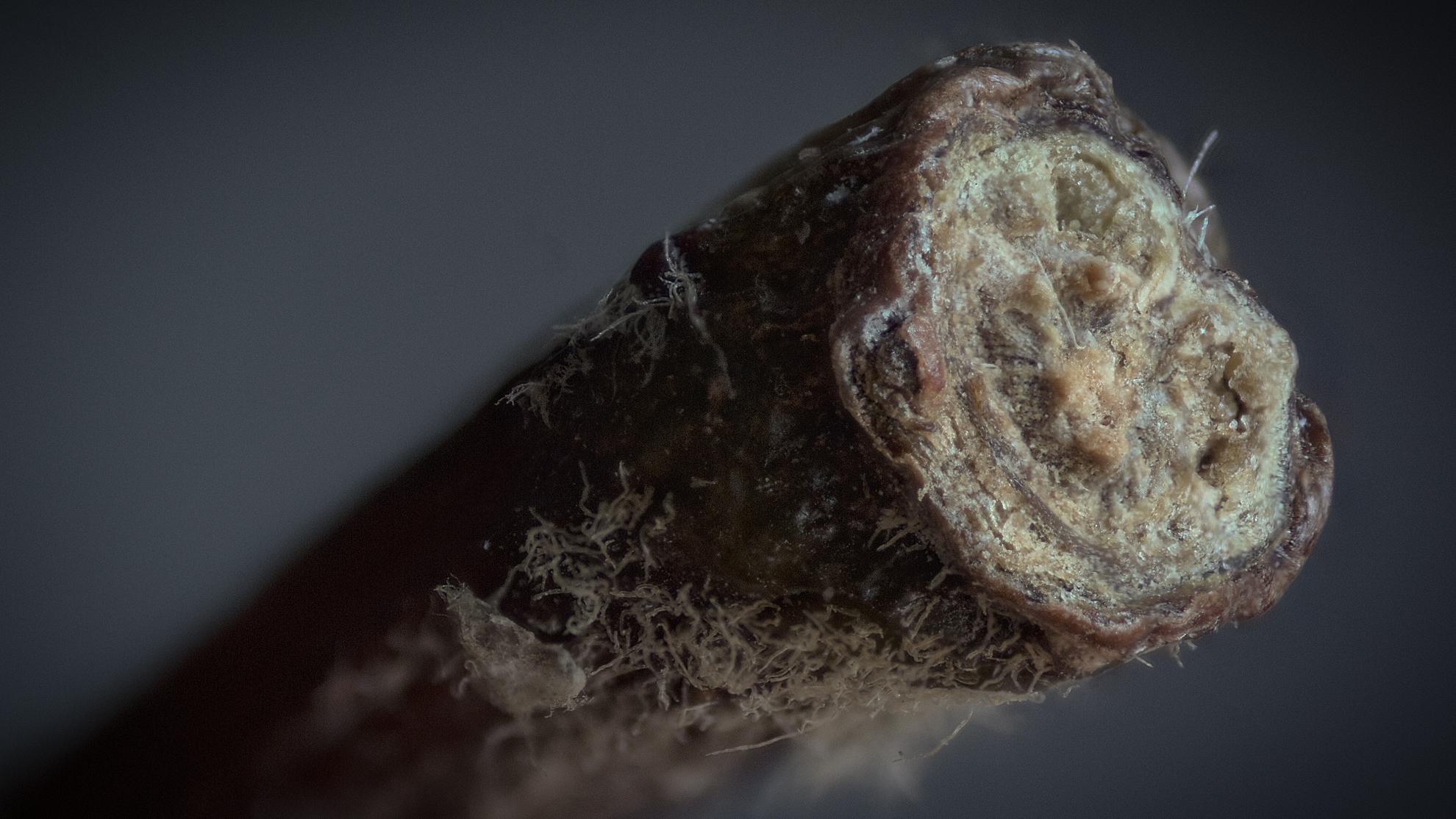 Pinworms a mikroszkóp alatt. Pinworm tojások milyen hőmérsékleten halnak meg